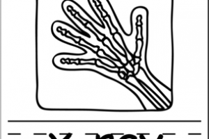 xray clipart black and white 2