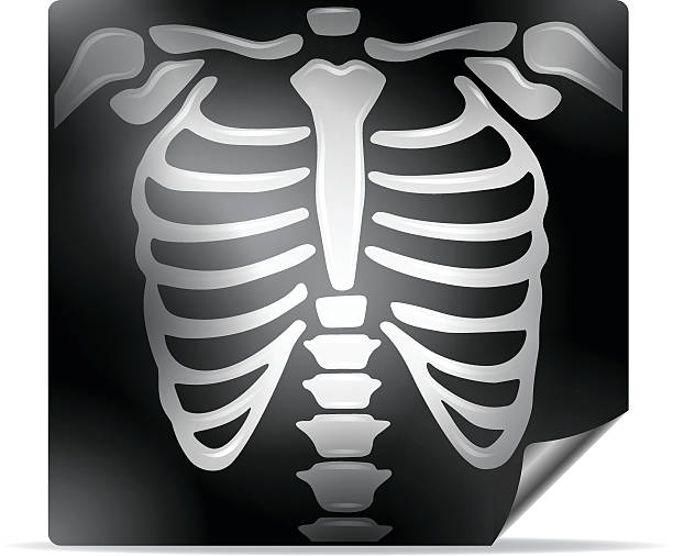 X Ray Clipart Black And White  Free download best X Ray