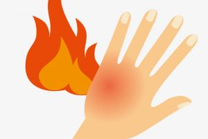 burned hand clipart 4