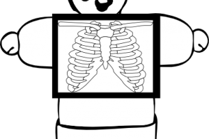 xray clipart black and white 11