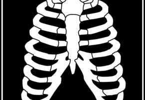 xray clipart black and white 6