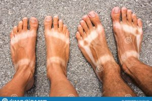 sunburn feet clipart 5